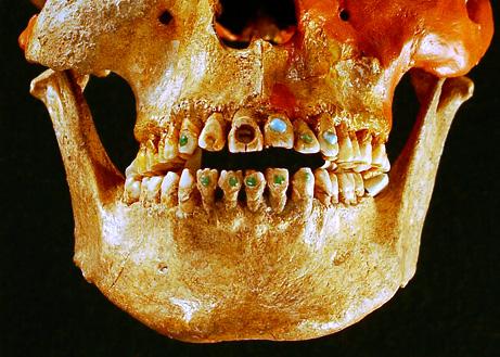 090518-first-dentists_big.jpg